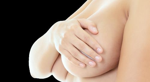 Brustvergrößerung Implantat Brustvergrößerung Eigenfett Brustverkleinerung Bruststraffung Eingezogenen Brustwarzen