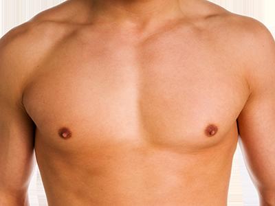 Brustverkleinerung Mann